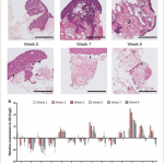 Patient-derived scaffolds as a model of colorectal cancer